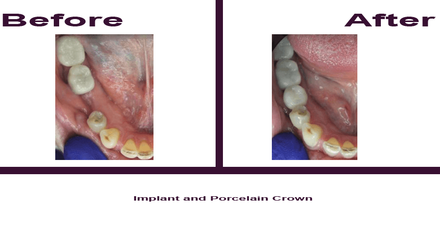 Implant-and-Porcelain-Crown Smile Gallery