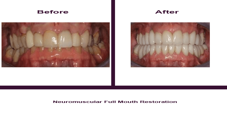 Neuromuscular-Full-Mouth-Restoration-1 Smile Gallery
