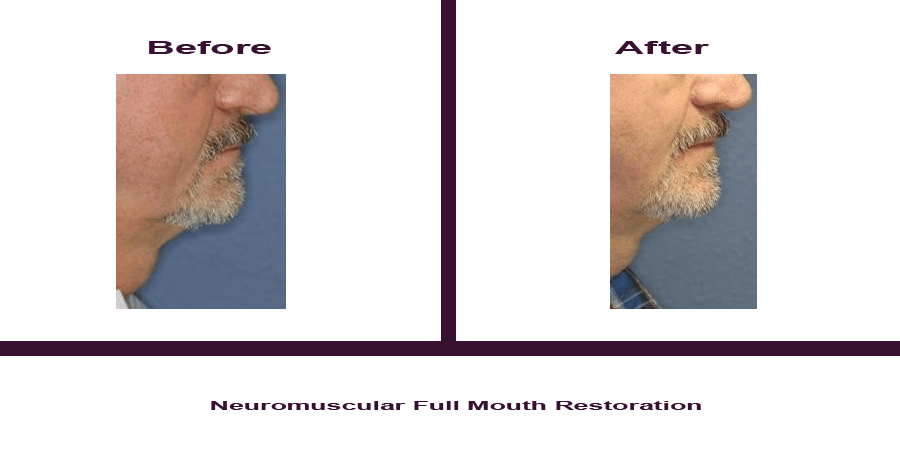 Neuromuscular-Full-Mouth-Restoration-2 Smile Gallery