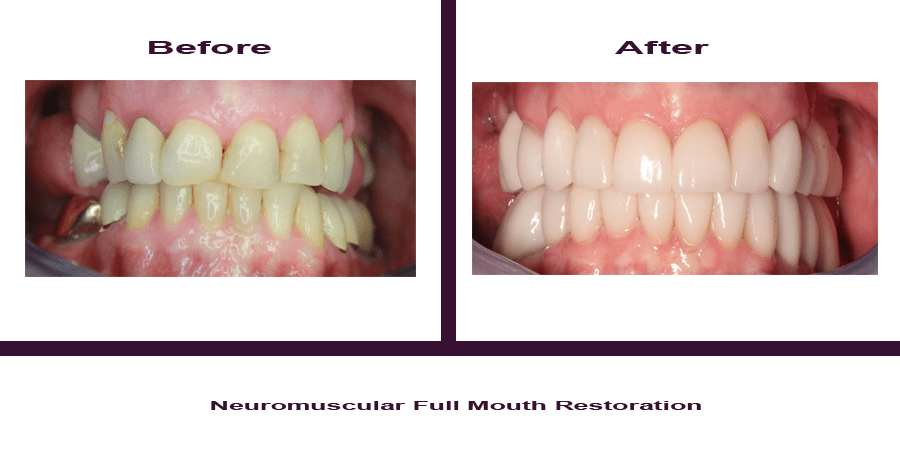 Neuromuscular-Full-Mouth-Restoration-3 Smile Gallery