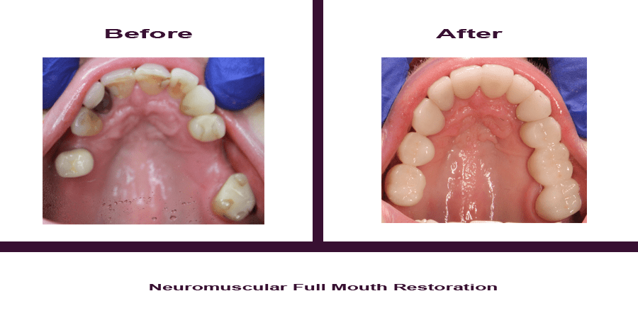 Neuromuscular-Full-Mouth-Restoration-4 Smile Gallery