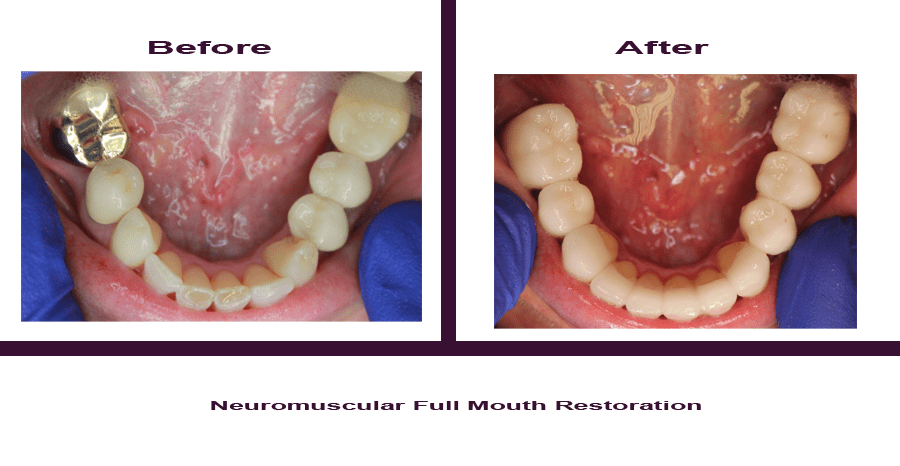 Neuromuscular-Full-Mouth-Restoration-5 Smile Gallery