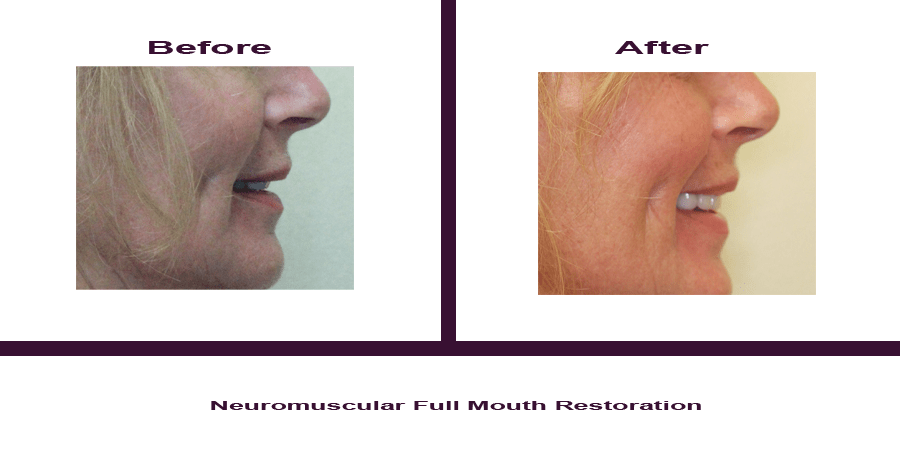 Neuromuscular-Full-Mouth-Restoration-6 Smile Gallery