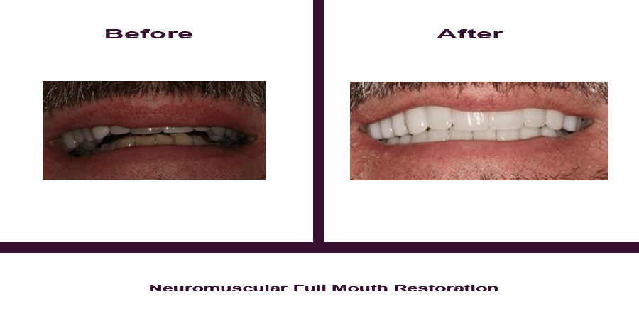 Neuromuscular-Full-Mouth-Restoration Smile Gallery