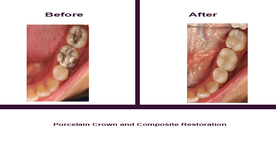 Porcelain-Crown-and-Composite-Restoration Smile Gallery