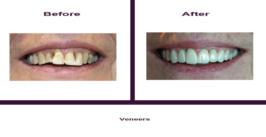 Veneers Smile Gallery