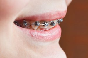 orthodontics-300x200 Orthodontics