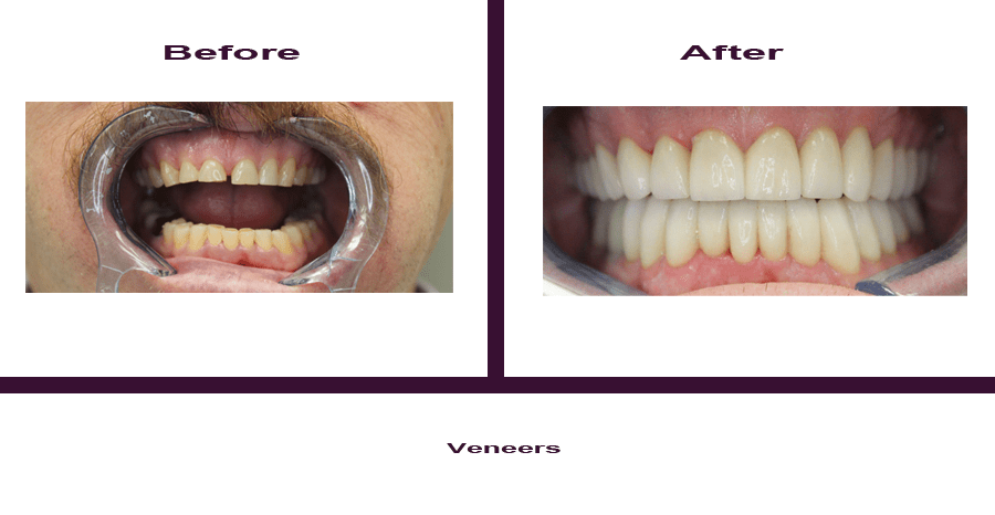veneers-1 Smile Gallery