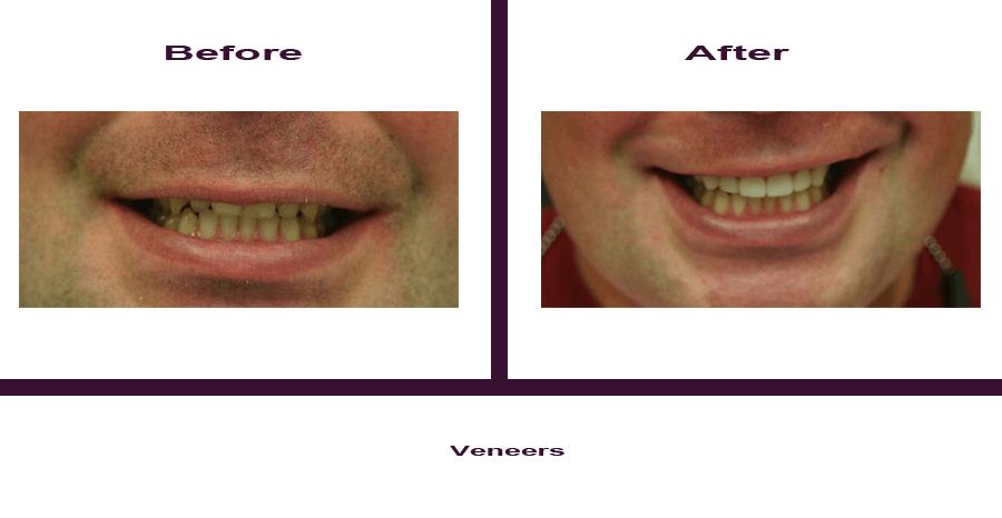 veneers-3 Smile Gallery