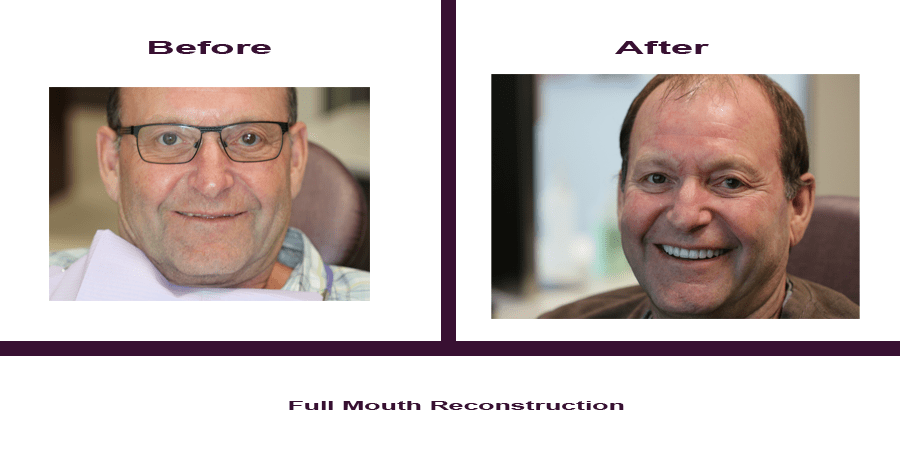 full-mouth-reconstruction Smile Gallery