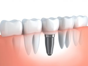 dental-implants-300x225 Oral Surgery