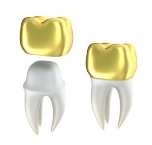 porcelain-crowns-300x287 Repair of Fractured Teeth