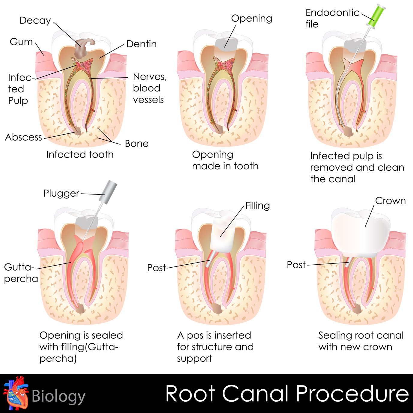 Root Canals: separating fact from myth | Restorative dentistry in Grande Prairie, AB