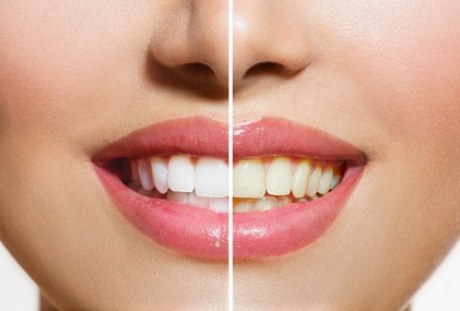 tooth-whitening Teeth Whitening