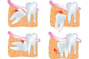 wisdom-teeth-300x200 Oral Surgery