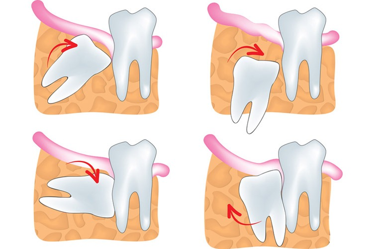 Is it wise to keep your wisdom teeth?