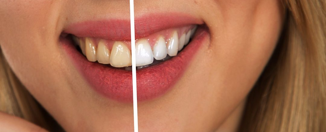 Teeth whitening by Dr. Michael Boisson at Boisson Dental Group in Grande Prairie, Alberta