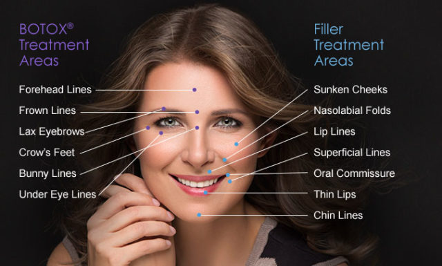 BOTOX-vs-Fillers-diagram-640x385 FILLERS