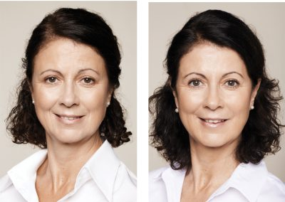 Dolores-age-55-after-400x284 FILLERS