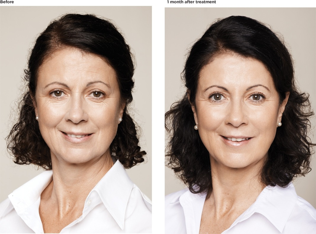 Dolores-age-55-after FILLERS