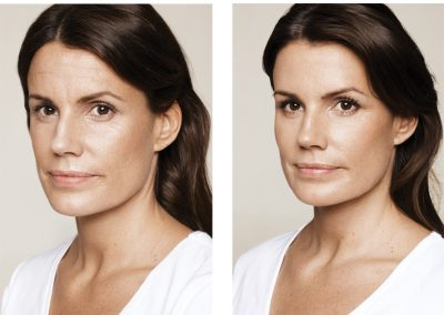 Pia-age-36-before-treatment-400x284 FILLERS