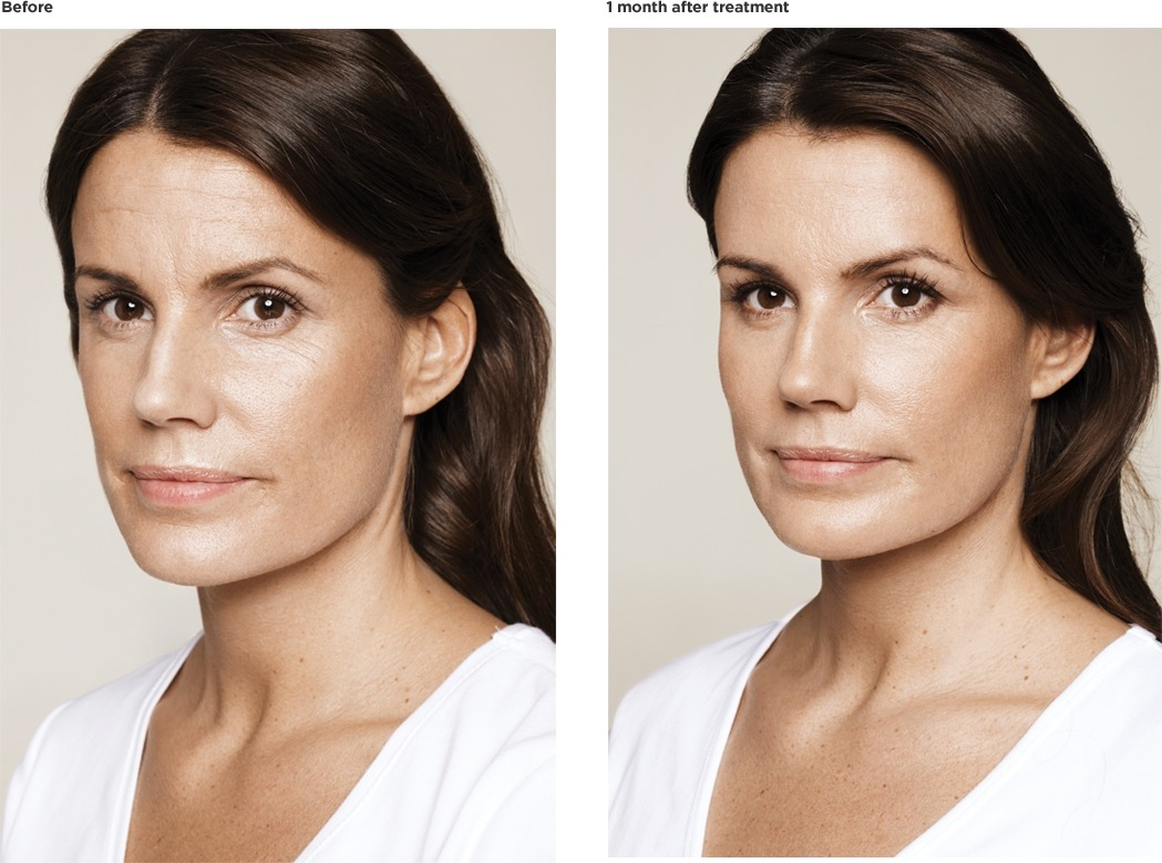 Pia-age-36-before-treatment FILLERS